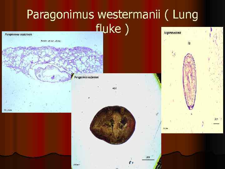 Paragonimus westermanii ( Lung fluke )