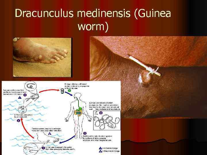 Dracunculus medinensis (Guinea worm)