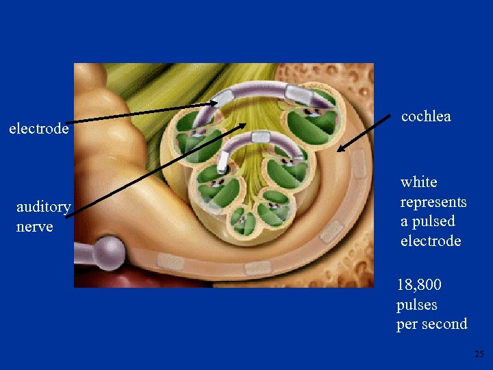 electrode auditory nerve cochlea white represents a pulsed electrode 18, 800 pulses per second
