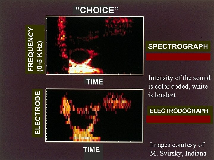 """FREQUENCY (0 -5 KHz) """"CHOICE"""" SPECTROGRAPH ELECTRODE TIME Intensity of the sound is color"""