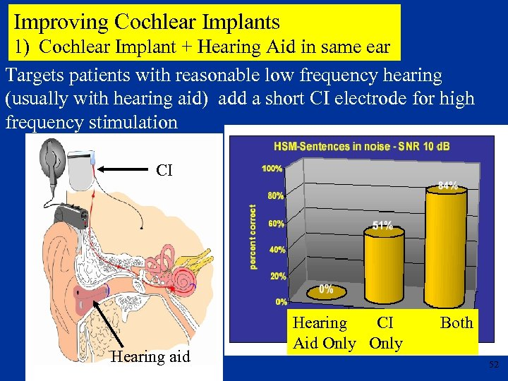 Improving Cochlear Implants 1) Cochlear Implant + Hearing Aid in same ear Targets patients