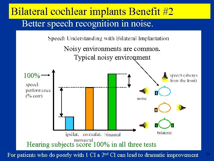 Bilateral cochlear implants Benefit #2 Better speech recognition in noise. Noisy environments are common.