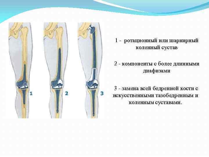 1 - ротационный или шарнирный коленный сустав 2 - компоненты с более длинными диафизами