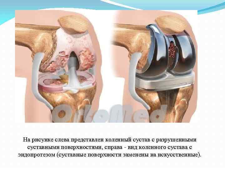 На рисунке слева представлен коленный сустав с разрушенными суставными поверхностями, справа - вид коленного