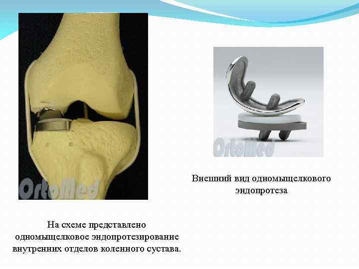 Внешний вид одномыщелкового эндопротеза На схеме представлено одномыщелковое эндопротезирование внутренних отделов коленного сустава.