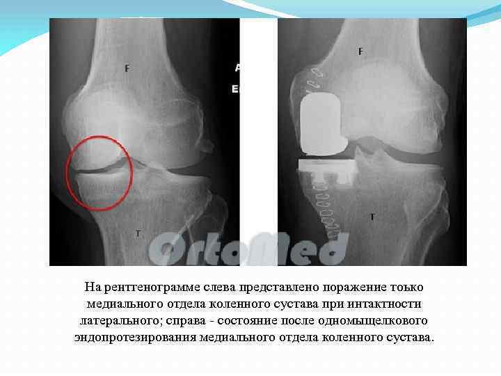 На рентгенограмме слева представлено поражение тоько медиального отдела коленного сустава при интактности латерального; справа