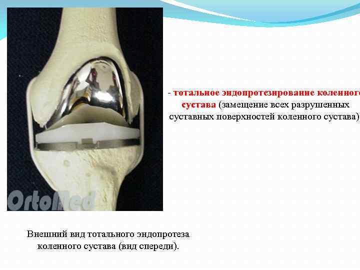 - тотальное эндопротезирование коленного сустава (замещение всех разрушенных суставных поверхностей коленного сустава). Внешний вид