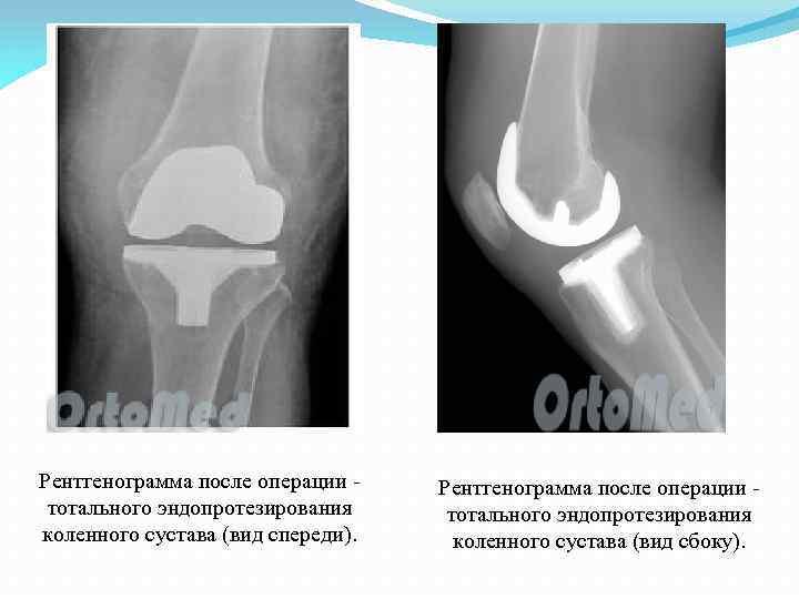Рентгенограмма после операции - тотального эндопротезирования коленного сустава (вид спереди). Рентгенограмма после операции -