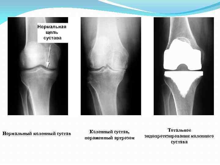 Нормальный коленный сустав Коленный сустав, пораженный артрозом Тотальное эндопротезирование коленного сустава