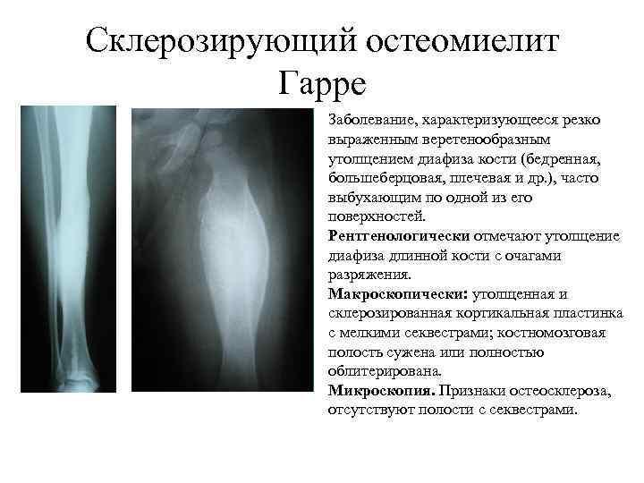Склерозирующий остеомиелит Гарре Заболевание, характеризующееся резко выраженным веретенообразным утолщением диафиза кости (бедренная, большеберцовая, плечевая