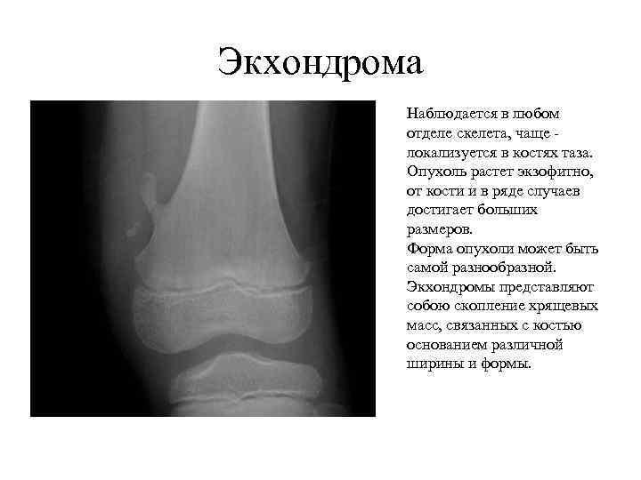Экхондрома Наблюдается в любом отделе скелета, чаще локализуется в костях таза. Опухоль растет экзофитно,