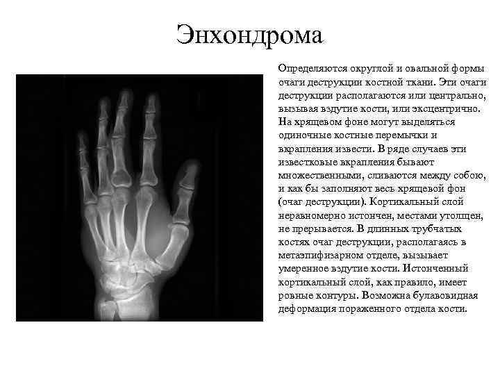Энхондрома Определяются округлой и овальной формы очаги деструкции костной ткани. Эти очаги деструкции располагаются