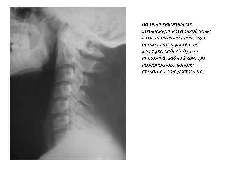На рентгенограмме краниовертебральной зоны в сагиттальной проекции отмечается удвоение контура задней дужки атланта, задний