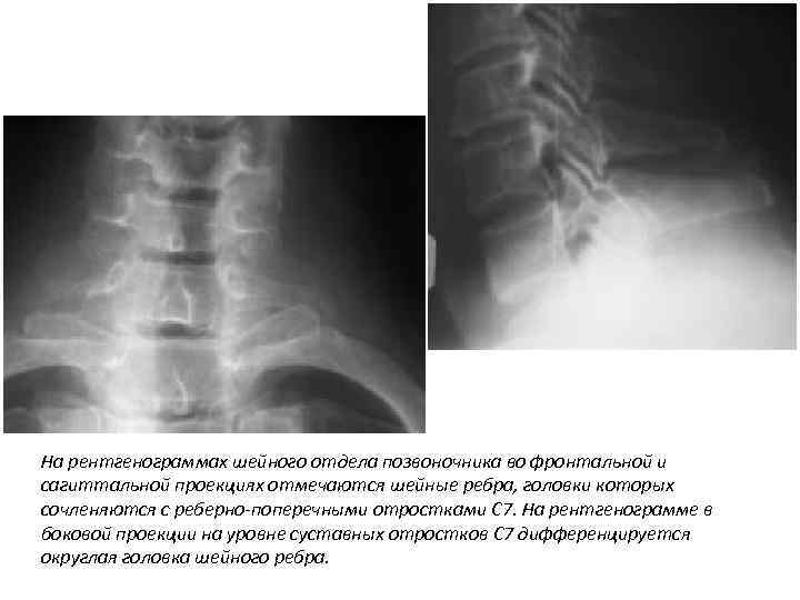 На рентгенограммах шейного отдела позвоночника во фронтальной и сагиттальной проекциях отмечаются шейные ребра, головки