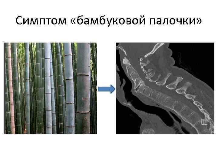 Симптом «бамбуковой палочки»