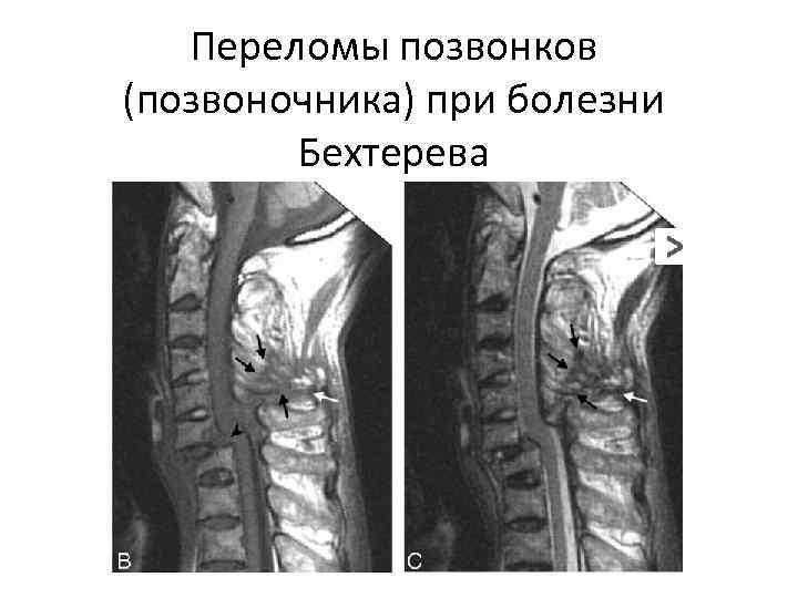 Переломы позвонков (позвоночника) при болезни Бехтерева