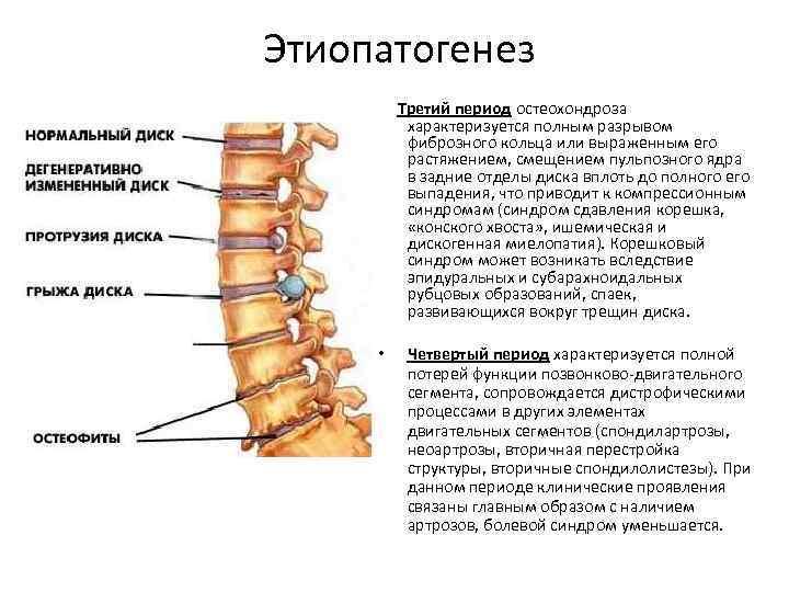 Этиопатогенез Третий период остеохондроза характеризуется полным разрывом фиброзного кольца или выраженным его растяжением, смещением