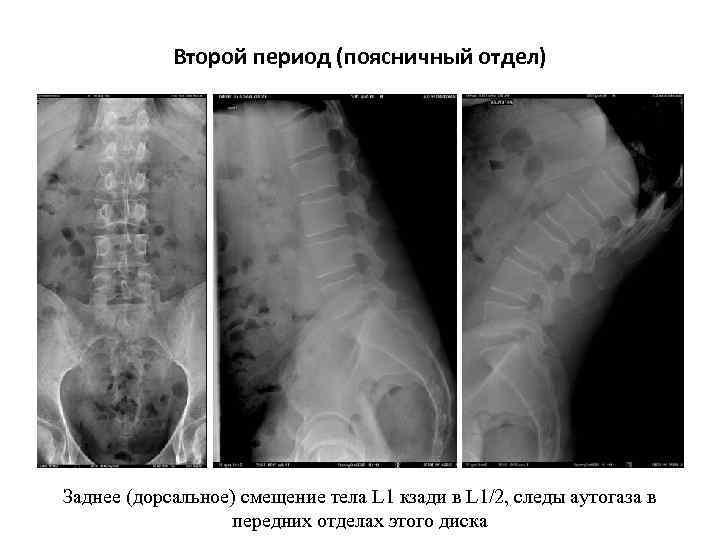 Второй период (поясничный отдел) Заднее (дорсальное) смещение тела L 1 кзади в L 1/2,