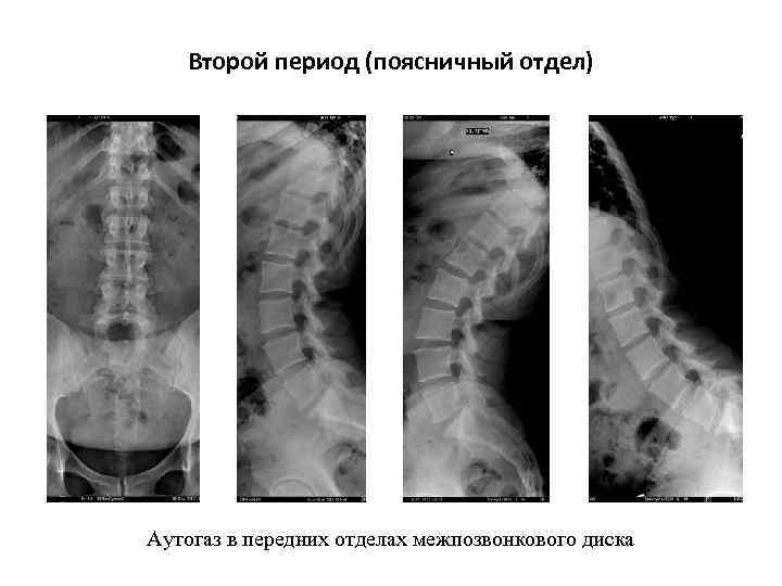 Второй период (поясничный отдел) Аутогаз в передних отделах межпозвонкового диска