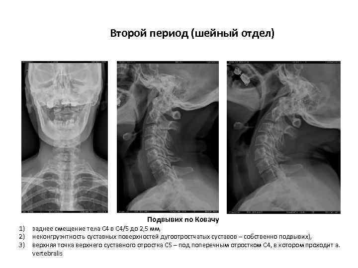 Второй период (шейный отдел) 1) 2) 3) Подвывих по Ковачу заднее смещение тела С