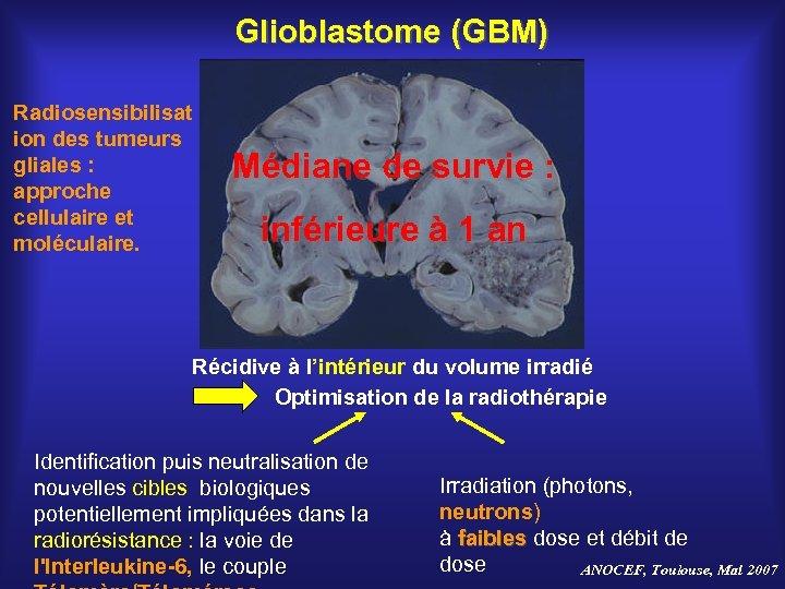 Glioblastome (GBM) Radiosensibilisat ion des tumeurs gliales : approche cellulaire et moléculaire. Médiane de