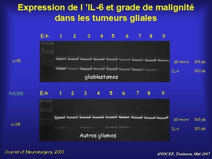 Expression de l 'IL-6 et grade de malignité dans les tumeurs gliales Ech 1