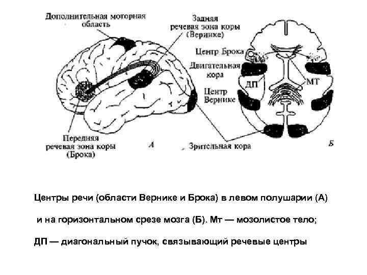 Центры речи (области Вернике и Брока) в левом полушарии (А) и на горизонтальном срезе