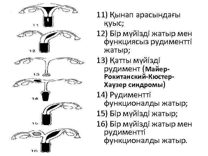 11) Қынап арасындағы қуыс; 12) Бір мүйізді жатыр мен функциясыз рудиментті жатыр; 13) Қатты