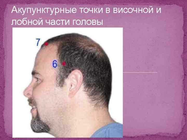 Акупунктурные точки в височной и лобной части головы