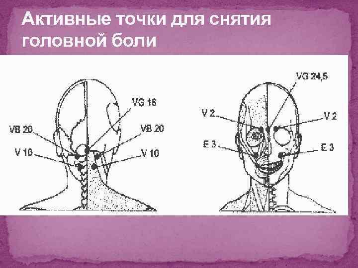 Активные точки для снятия головной боли