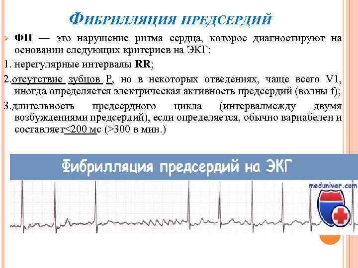 ФИБРИЛЛЯЦИЯ ПРЕДСЕРДИЙ ФП — это нарушение ритма сердца, которое диагностируют на основании следующих критериев