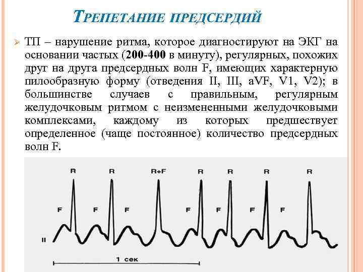 ТРЕПЕТАНИЕ ПРЕДСЕРДИЙ Ø ТП – нарушение ритма, которое диагностируют на ЭКГ на основании частых