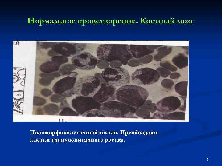 Нормальное кроветворение. Костный мозг Полиморфноклеточный состав. Преобладают клетки гранулоцитарного ростка. 7