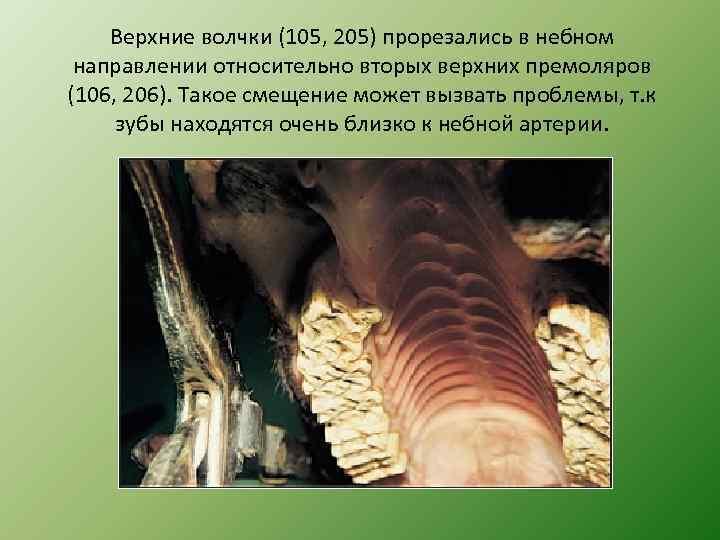 Верхние волчки (105, 205) прорезались в небном направлении относительно вторых верхних премоляров (106, 206).