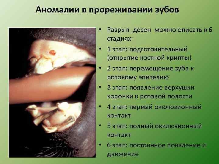 Аномалии в прореживании зубов • Разрыв десен можно описать в 6 стадиях: • 1
