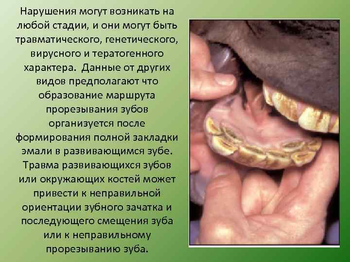 Нарушения могут возникать на любой стадии, и они могут быть травматического, генетического, вирусного и