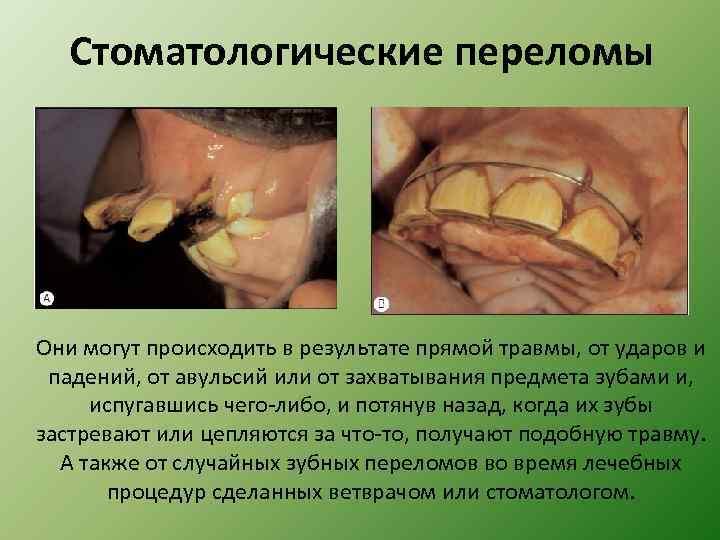 Стоматологические переломы Они могут происходить в результате прямой травмы, от ударов и падений, от