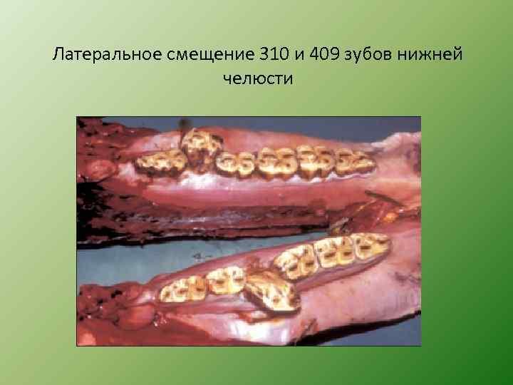 Латеральное смещение 310 и 409 зубов нижней челюсти