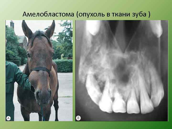 Амелобластома (опухоль в ткани зуба )