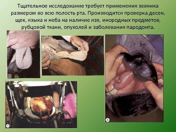 Тщательное исследование требует применения зевника размером во всю полость рта. Производится проверка десен, щек,
