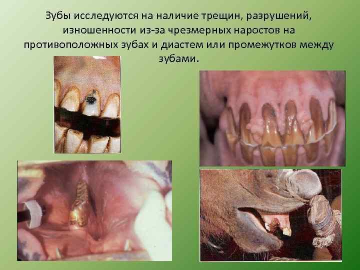 Зубы исследуются на наличие трещин, разрушений, изношенности из-за чрезмерных наростов на противоположных зубах и
