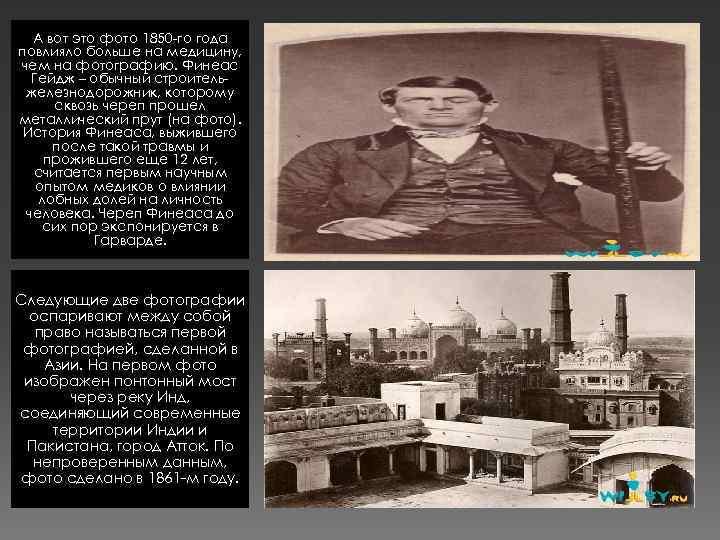 А вот это фото 1850 -го года повлияло больше на медицину, чем на фотографию.