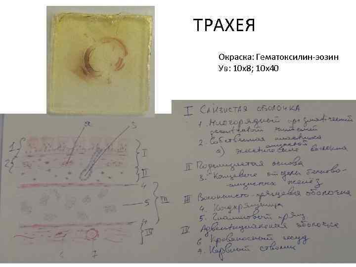 ТРАХЕЯ Окраска: Гематоксилин-эозин Ув: 10 х8; 10 х40