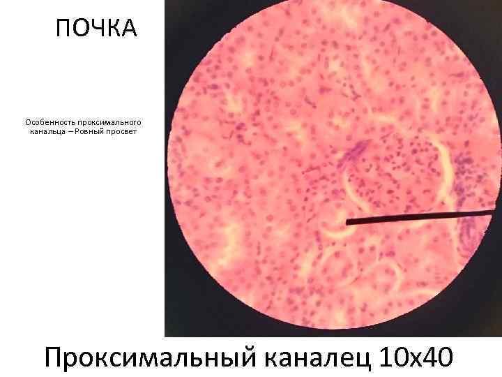 ПОЧКА Особенность проксимального канальца – Ровный просвет Проксимальныи каналец 10 х40