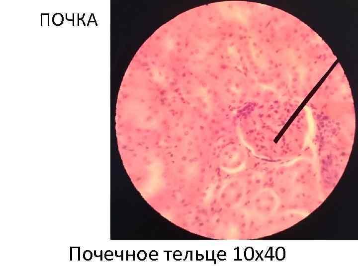 ПОЧКА Почечное тельце 10 х40