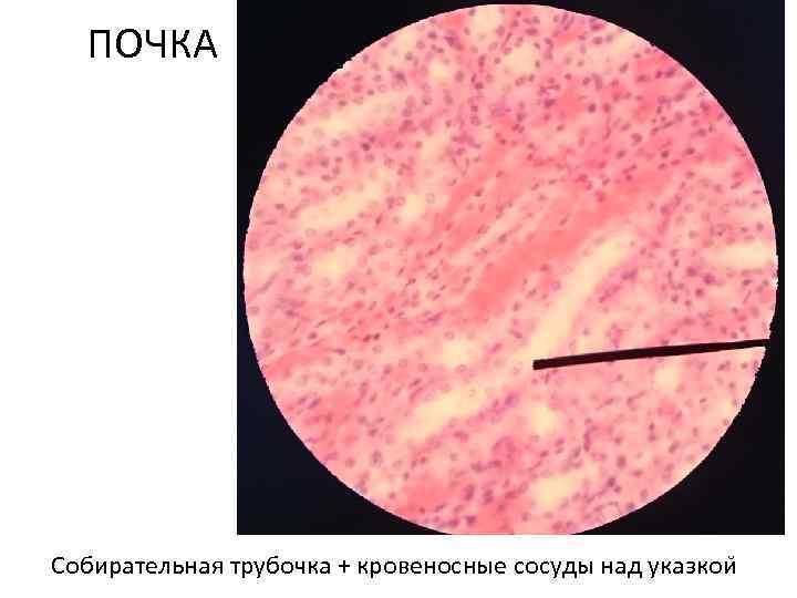 ПОЧКА Собирательная трубочка + кровеносные сосуды над указкои