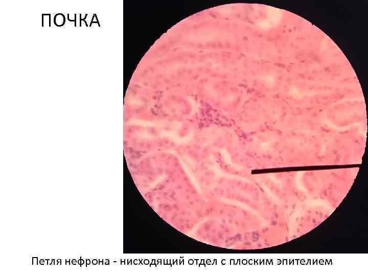 ПОЧКА Петля нефрона - нисходящий отдел с плоским эпителием