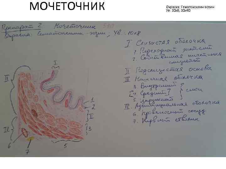 МОЧЕТОЧНИК Окраска: Гематоксилин-эозин Ув: 10 х8; 10 х40