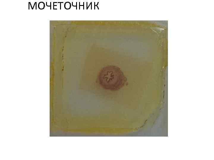 МОЧЕТОЧНИК