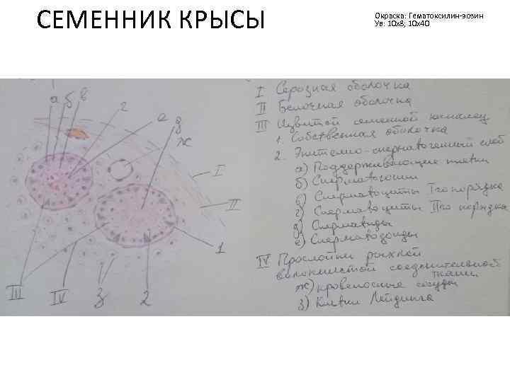 СЕМЕННИК КРЫСЫ Окраска: Гематоксилин-эозин Ув: 10 х8; 10 х40